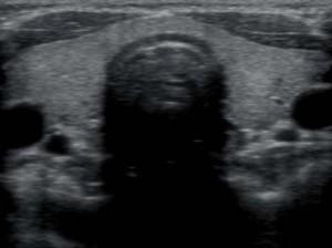 Нормальная щитовидка