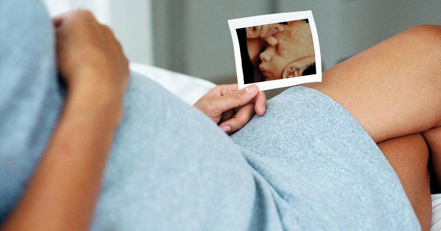 3Д узи при беременности как делают